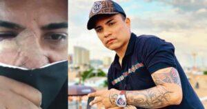 """""""Me dañaron mi cara"""": Mauricio Bastidas apareció tras el ataque y pidió ayuda 1"""