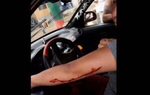 Atracaron e hirieron a taxista en el barrio San Antonio 1