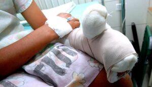 Menor en Mariquita resultó el quemado 32 por pólvora en el Tolima durante diciembre 1