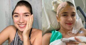 Joven recuperó parte de su cráneo tras someterse a una cirugía 1