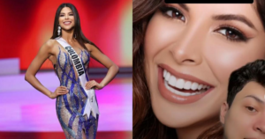 Miss Colombia no pasó prueba de sonrisa por las carillas 11